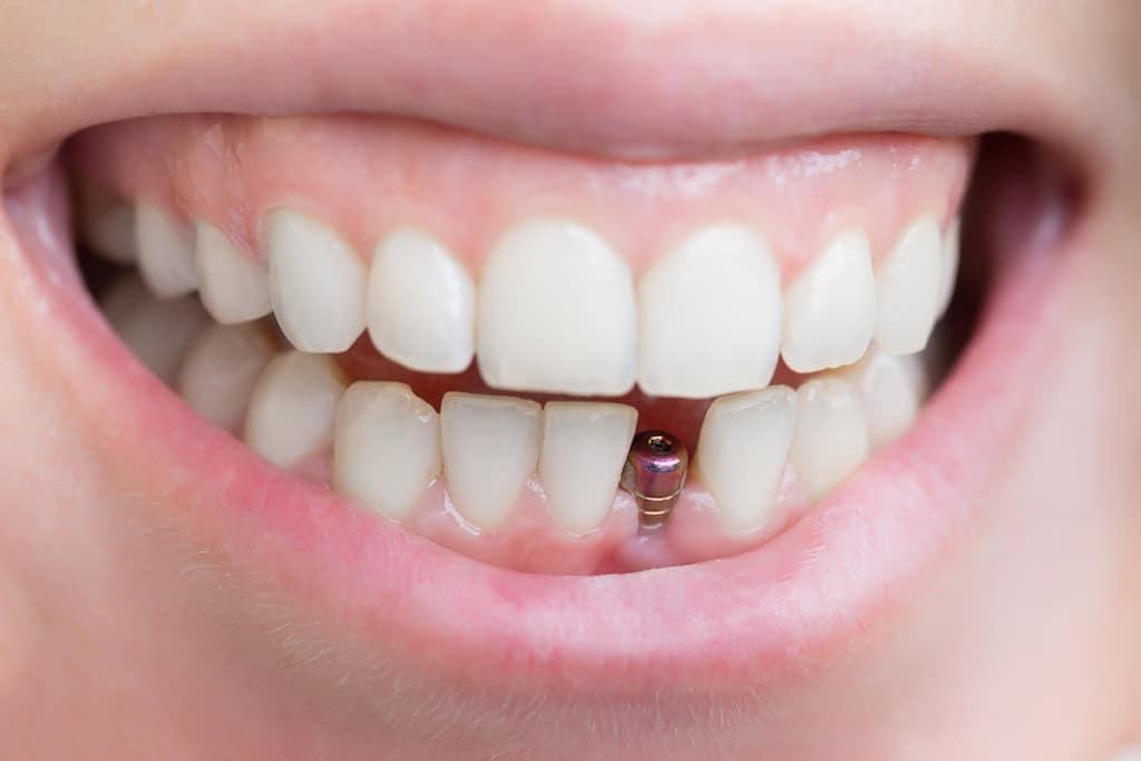 Dental Implants - Fioritto Family Dental