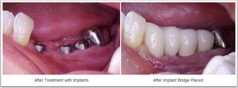 Dental Implants Picture