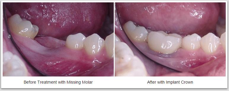 missing molar dental crown implant