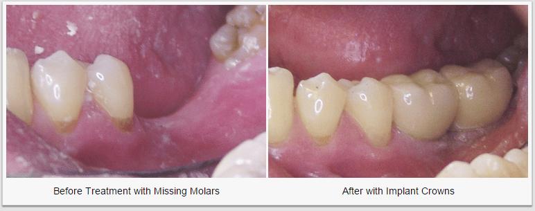 Dental Crown Molar