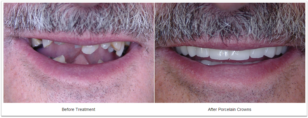 smile makeover Fioritto Family Dental